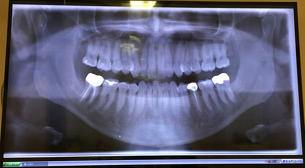 new dentist's x-ray