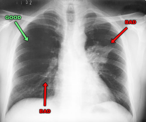 Lung X-rays with Pneumonia